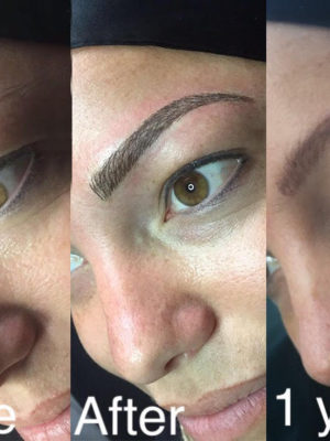 Thin or Missing Eyebrow solutions| HairandNowGlobal com