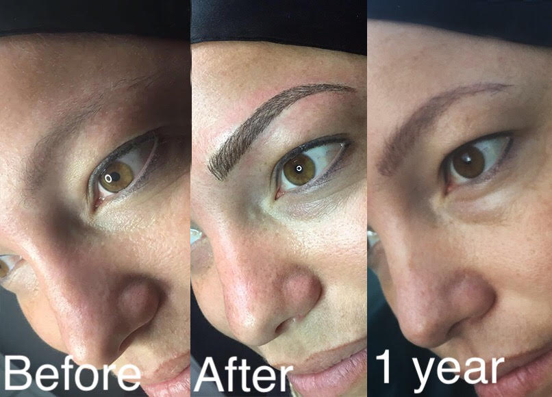 Micropigmentation vrs Microblading with hairloss| HairandNow